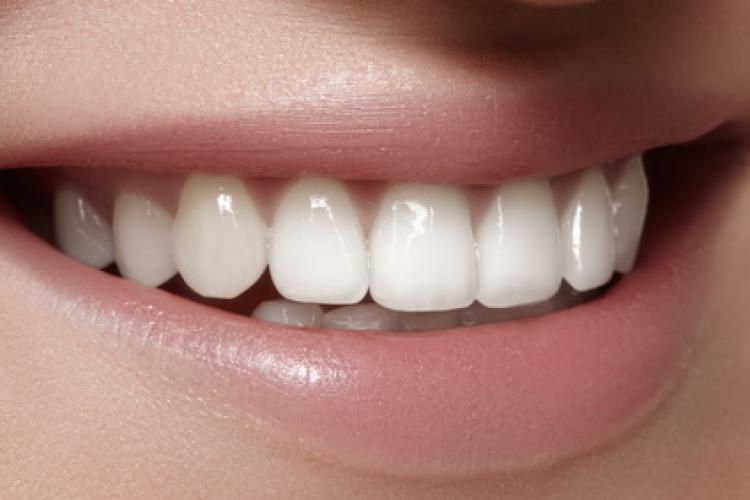 Restauraciones dentales en el color natural